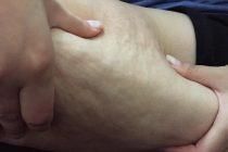 Cum scapam de celulita de pe picioare