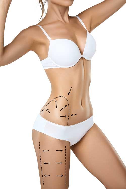 celulita - dupa tratamentul cu laser